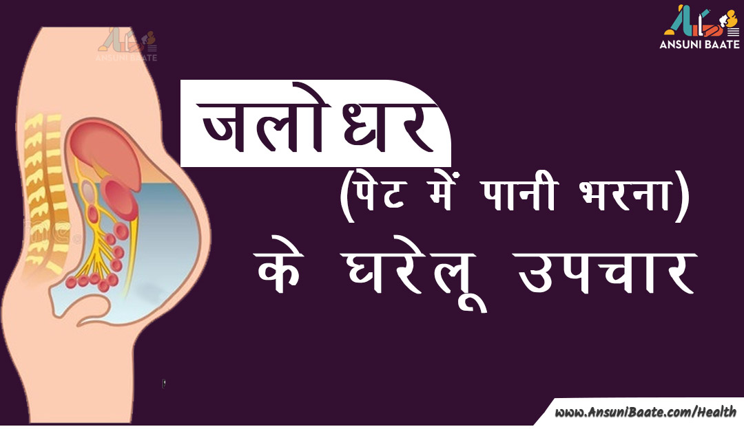 जलोदर के घरेलू उपाय - Home Remedies For Ascites In Hindi